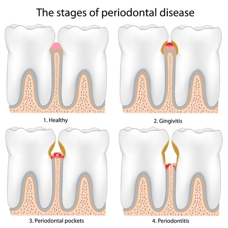 periodontal disease treatment
