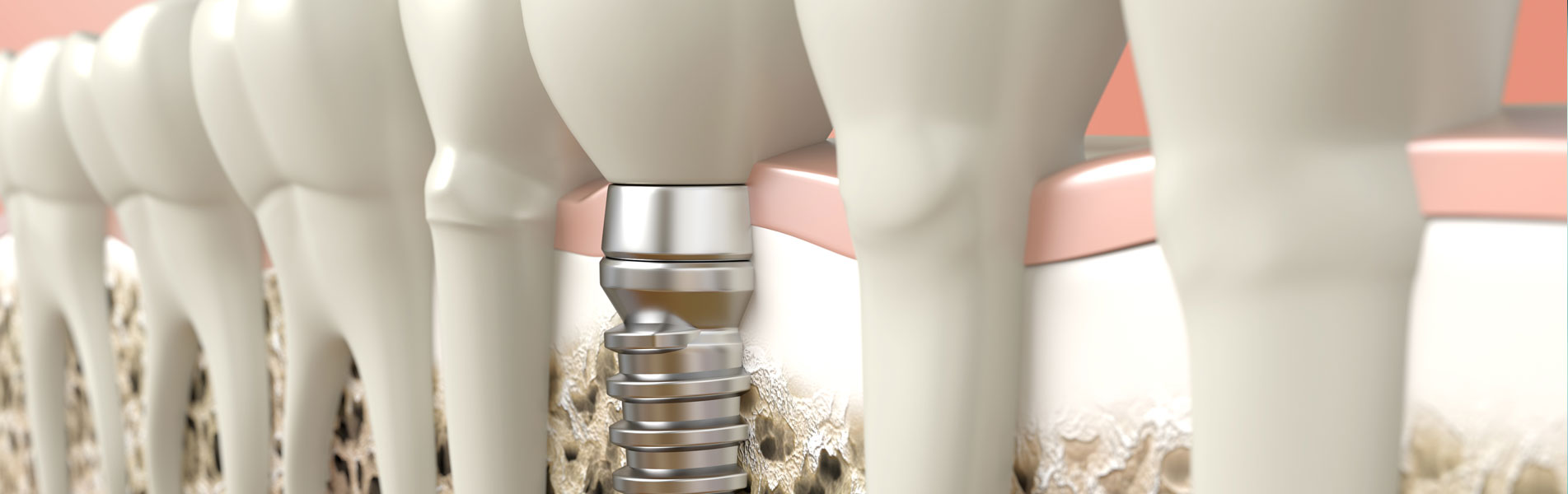 3d dental implants in south austin