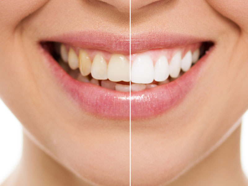 Teeth Whitening Dentist in South Austin