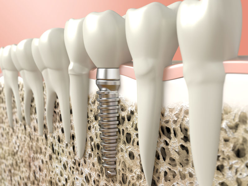 3d dental implants - Honest Family Dental